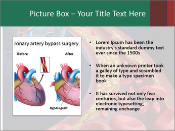 Human artery PowerPoint Template - Slide 13