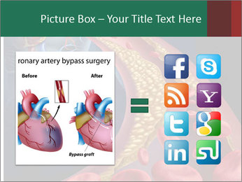 Human artery PowerPoint Template - Slide 21