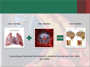 Human artery PowerPoint Template - Slide 22