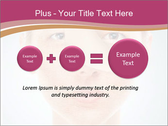 Skin after cosmetic procedure PowerPoint Template - Slide 75
