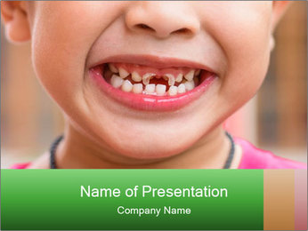 Kid patient open mouth showing caries teeth decay PowerPoint Template - Slide 1