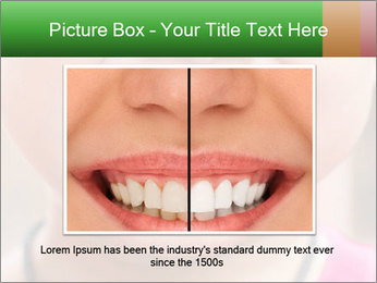 Kid patient open mouth showing caries teeth decay PowerPoint Template - Slide 15