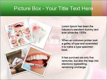 Kid patient open mouth showing caries teeth decay PowerPoint Template - Slide 23