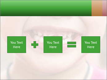 Kid patient open mouth showing caries teeth decay PowerPoint Template - Slide 95