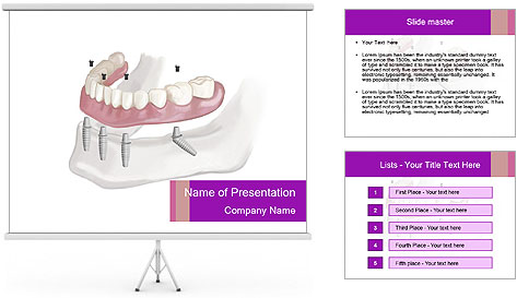 Teeth Implant Model PowerPoint Template