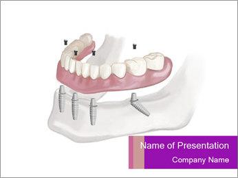 Teeth Implant Model PowerPoint Template - Slide 1