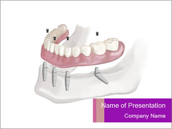 Teeth Implant Model PowerPoint Templates - Slide 1