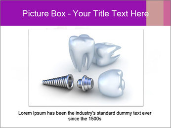 Teeth Implant Model PowerPoint Template - Slide 15
