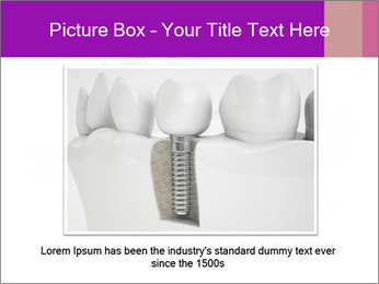 Teeth Implant Model PowerPoint Template - Slide 16