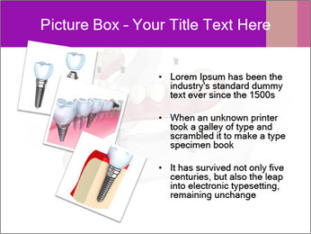 Teeth Implant Model PowerPoint Template - Slide 17