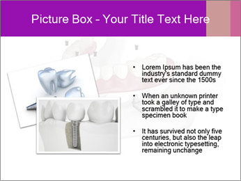Teeth Implant Model PowerPoint Template - Slide 20