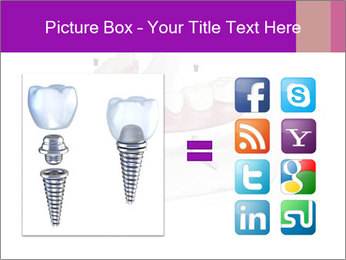 Teeth Implant Model PowerPoint Template - Slide 21
