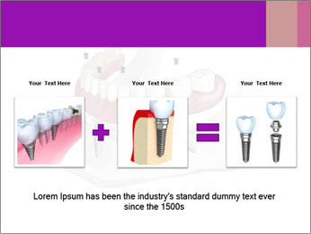 Teeth Implant Model PowerPoint Template - Slide 22