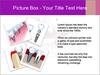 Teeth Implant Model PowerPoint Template - Slide 23