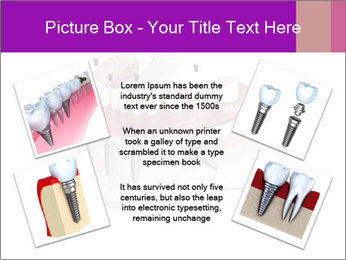 Teeth Implant Model PowerPoint Template - Slide 24