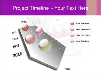 Teeth Implant Model PowerPoint Templates - Slide 26