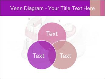 Teeth Implant Model PowerPoint Template - Slide 33