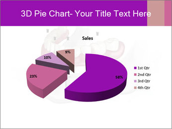Teeth Implant Model PowerPoint Template - Slide 35