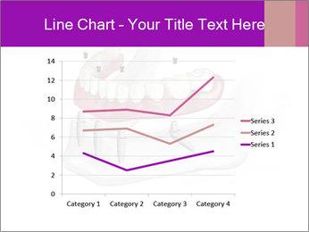Teeth Implant Model PowerPoint Templates - Slide 54