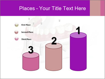 Teeth Implant Model PowerPoint Template - Slide 65