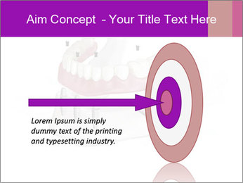 Teeth Implant Model PowerPoint Template - Slide 83