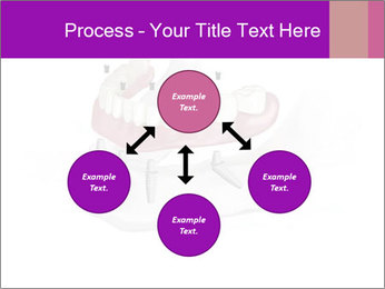 Teeth Implant Model PowerPoint Template - Slide 91