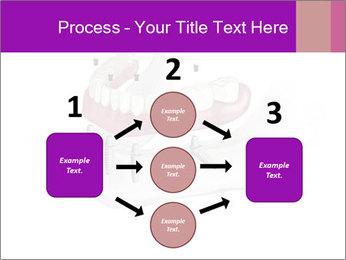 Teeth Implant Model PowerPoint Template - Slide 92