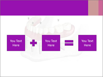 Teeth Implant Model PowerPoint Template - Slide 95