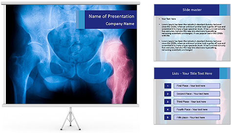 Hip X-Ray PowerPoint Template
