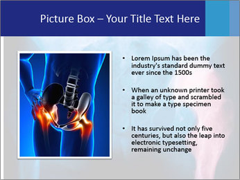 Hip X-Ray PowerPoint Templates - Slide 13