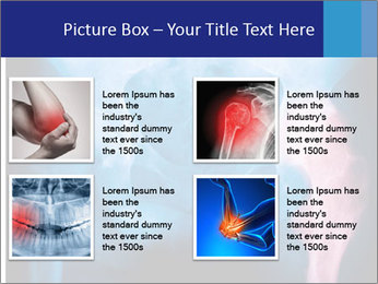 Hip X-Ray PowerPoint Templates - Slide 14