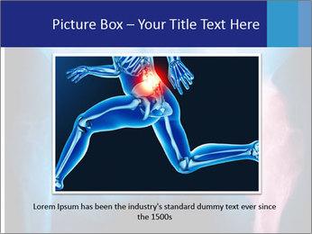 Hip X-Ray PowerPoint Templates - Slide 15