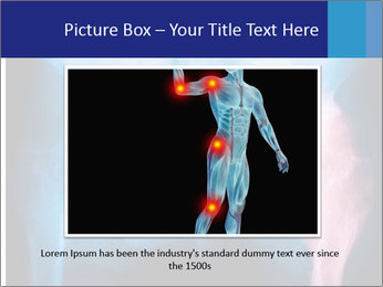 Hip X-Ray PowerPoint Templates - Slide 16