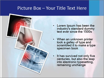 Hip X-Ray PowerPoint Templates - Slide 17