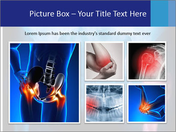 Hip X-Ray PowerPoint Templates - Slide 19