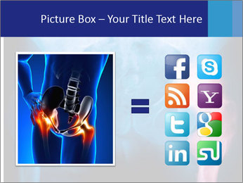 Hip X-Ray PowerPoint Templates - Slide 21
