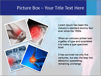 Hip X-Ray PowerPoint Templates - Slide 23