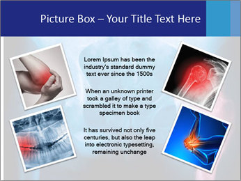 Hip X-Ray PowerPoint Templates - Slide 24
