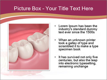 Acrylic denture PowerPoint Template - Slide 13