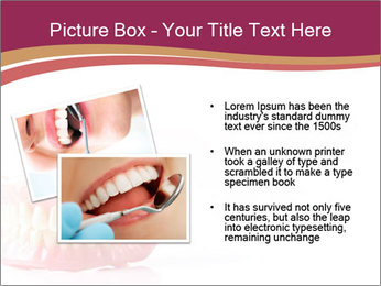 Acrylic denture PowerPoint Template - Slide 20