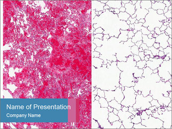 The blood veins in the lungs PowerPoint Template
