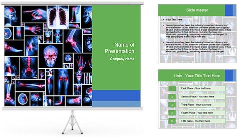 Bones X-Ray PowerPoint Template