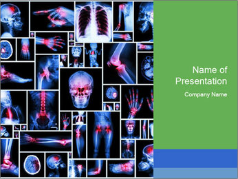Bones X-Ray PowerPoint Template - Slide 1