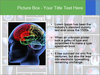 Bones X-Ray PowerPoint Templates - Slide 13