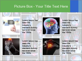 Bones X-Ray PowerPoint Templates - Slide 14