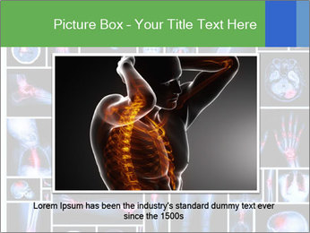Bones X-Ray PowerPoint Templates - Slide 15