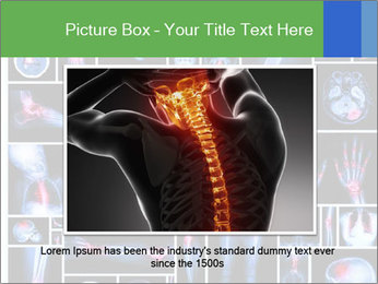 Bones X-Ray PowerPoint Templates - Slide 16