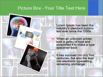 Bones X-Ray PowerPoint Template - Slide 17