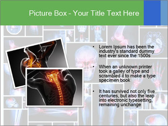 Bones X-Ray PowerPoint Template - Slide 20