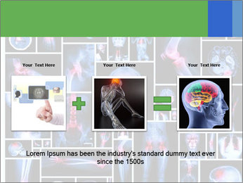 Bones X-Ray PowerPoint Templates - Slide 22